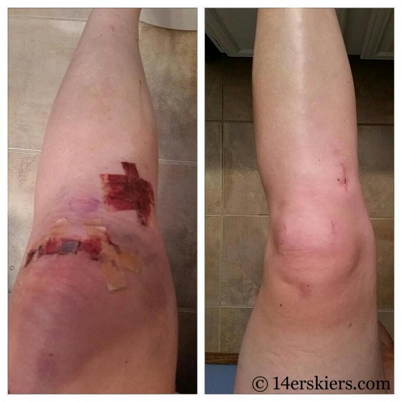 Bone graft knee surgery