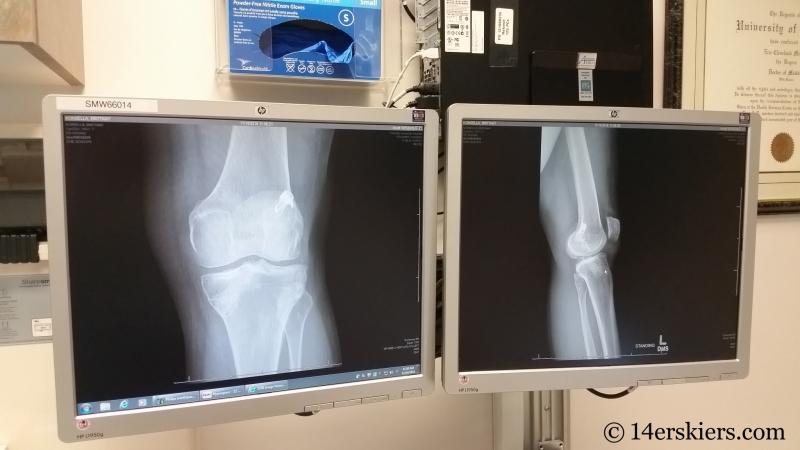 Left knee xrays