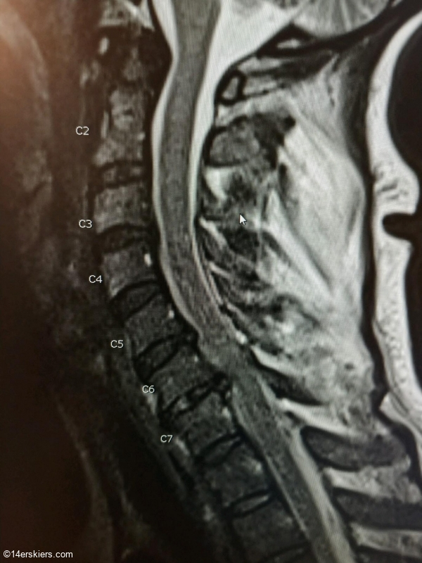 Spinal damage.